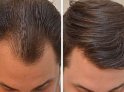hinweise-fur-eine-haartransplantation